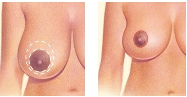 Donut breast reduction
